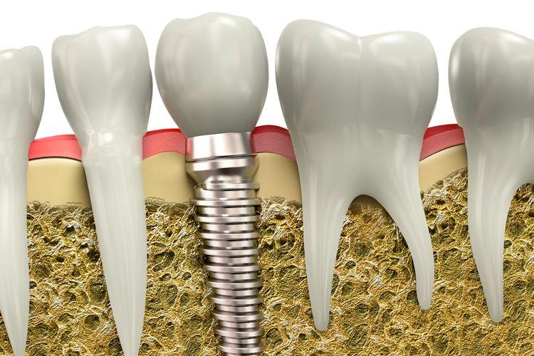 Leczenie implantologiczne – wszystko, co musisz o nim wiedzieć!