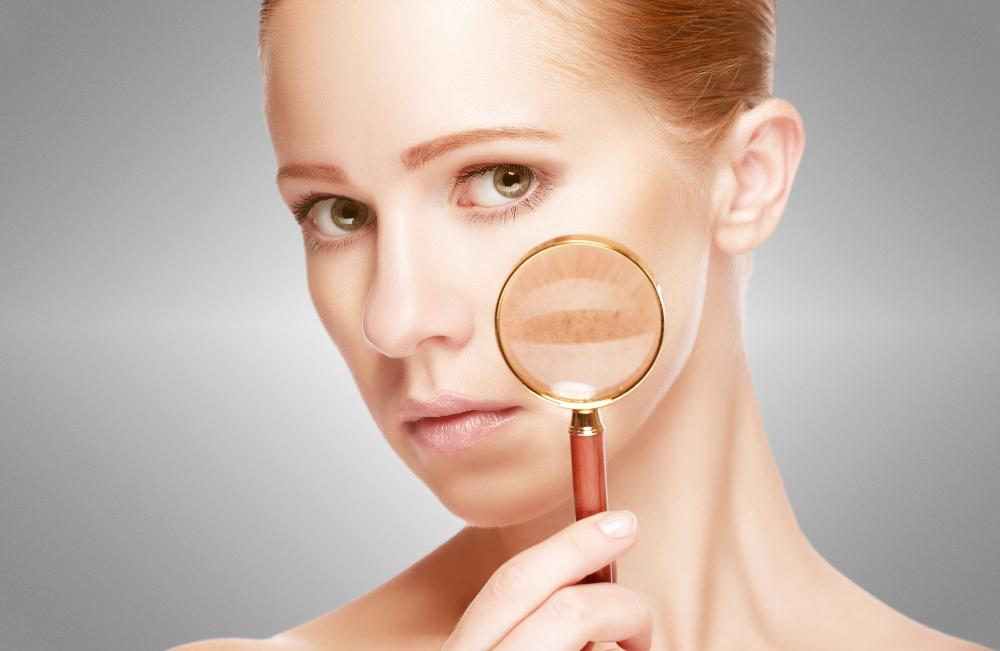 Co robić z przebarwieniami skóry