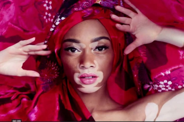 Winnie Harlow dołącza do Victoria's Secret