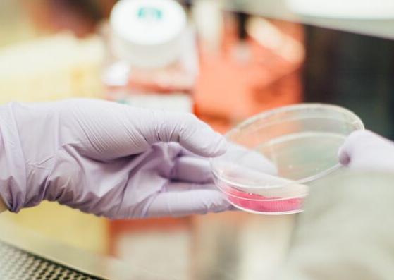 Żele antybakteryjne – czy są skuteczne?