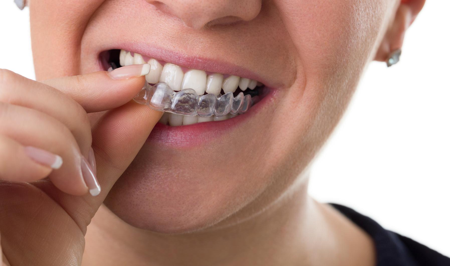Nowe trendy w stomatologii i ortodoncji