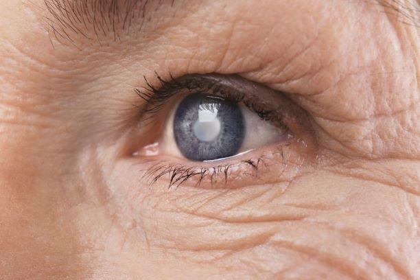 Zaćma to groźna choroba oczu! Nie lekceważ jej objawów!