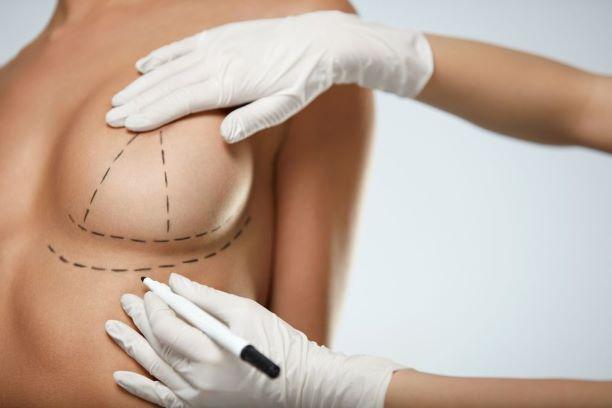 Operacje plastyczne biustu. Fakty i mity